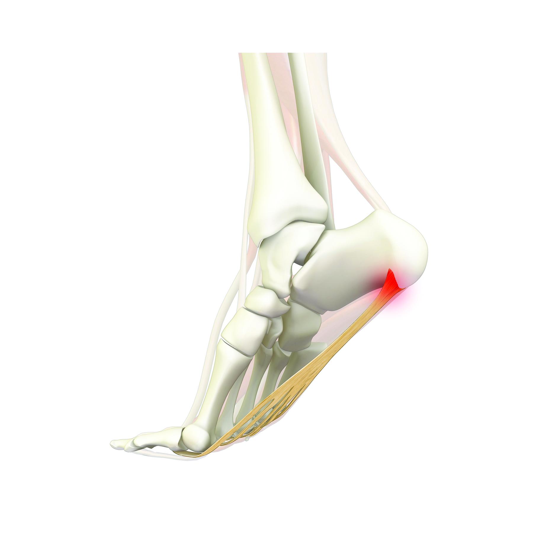 anatomy-structure-foot-heel-pain